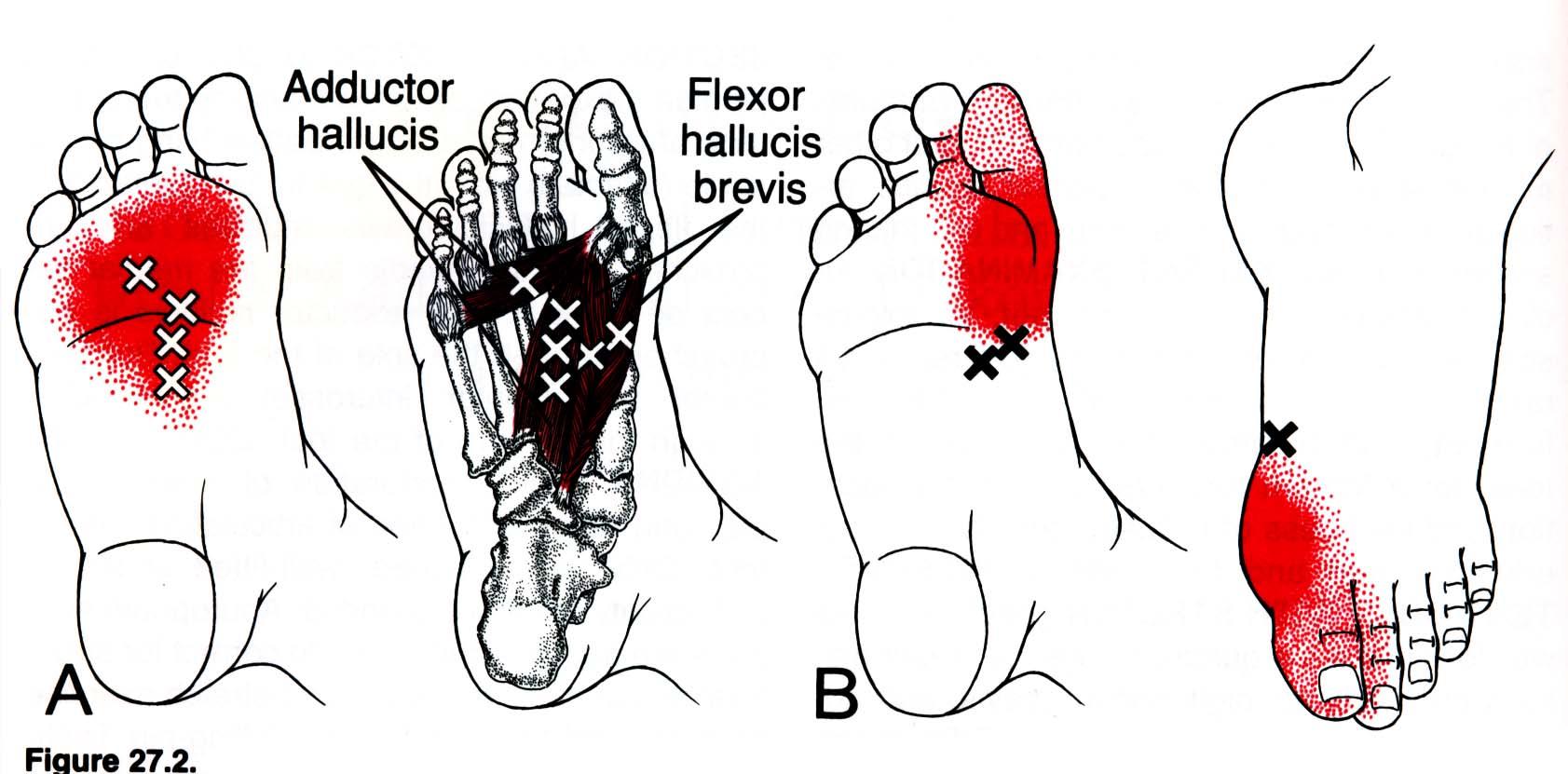 Боль в пальцевых суставах ноги 153